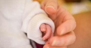 赤ちゃんの「赤いあざ」、乳児血管腫に効く薬は?の写真