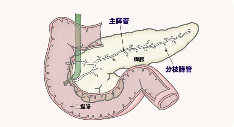 膵臓の主膵管と分枝膵管