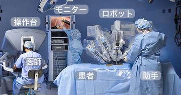 前立腺がんのロボット手術と開腹手術はどっちがいい?の写真