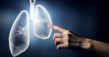 免疫チェックポイント阻害薬アテゾリズマブは非小細胞肺がんに効く?の写真