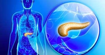 お酒の飲み過ぎで膵臓が溶ける?:膵がんにもつながる慢性膵炎とはの写真