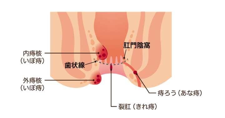 いぼ痔でも切れ痔でもない「あな痔」とは何か?:できやすい人と予防法についての写真
