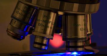 子宮頸がんの手前の段階「CIN2」を経過観察するとどうなる?の写真