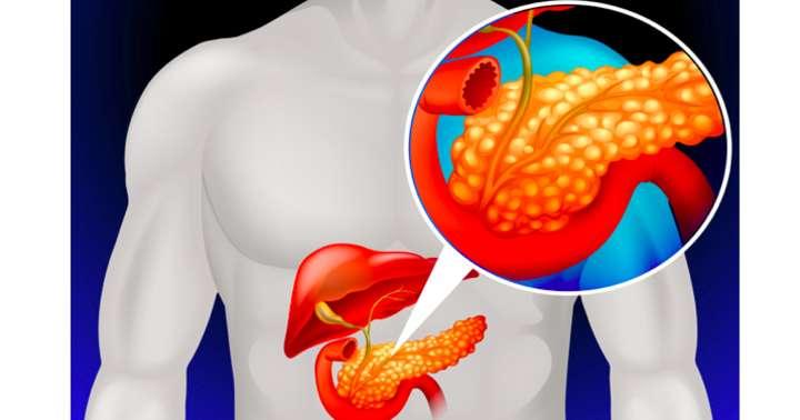 膵のう胞があると膵臓がんになりやすい?:膵臓が心配な人は必ず読んでくださいの写真
