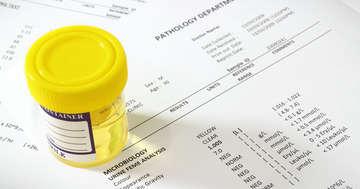 蛋白尿は腎臓からのSOS?健康診断で見つかった人はどうすればいいのかの写真