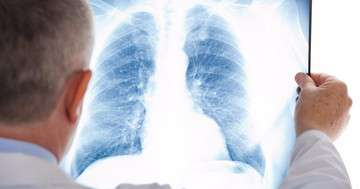非小細胞肺癌でプラチナの次に使う薬はニボルマブかドセタキセルか?