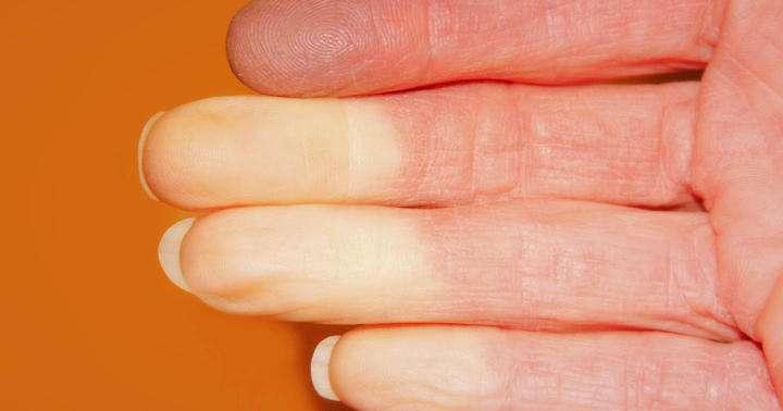 寒くなると指が真っ白になる?レイノー現象の注意点や対応とはの写真