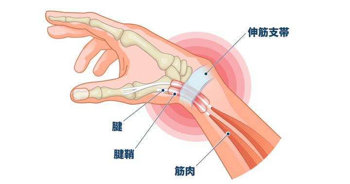 手術 腱鞘炎