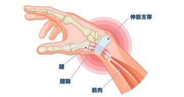 スマホの片手操作で親指に痛みが!悪化すると手術が必要になるドケルバン病(狭窄性腱鞘炎)の予防法とはの写真