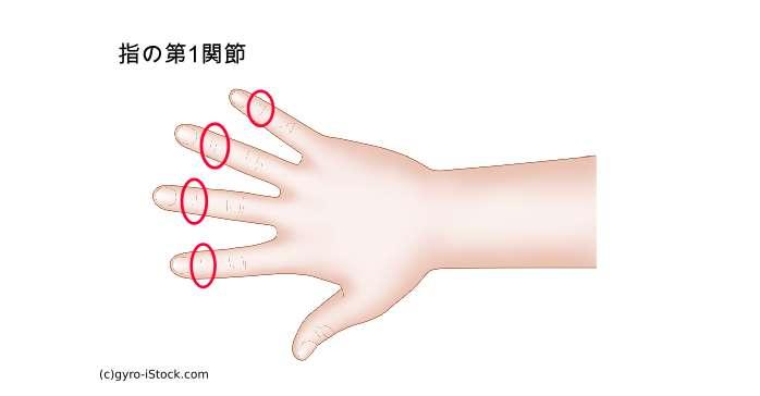 突き指 症状