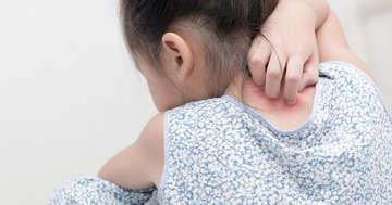 アナフィラキシーとは:蕁麻疹(じんましん)に潜む緊急サインに要注意の写真