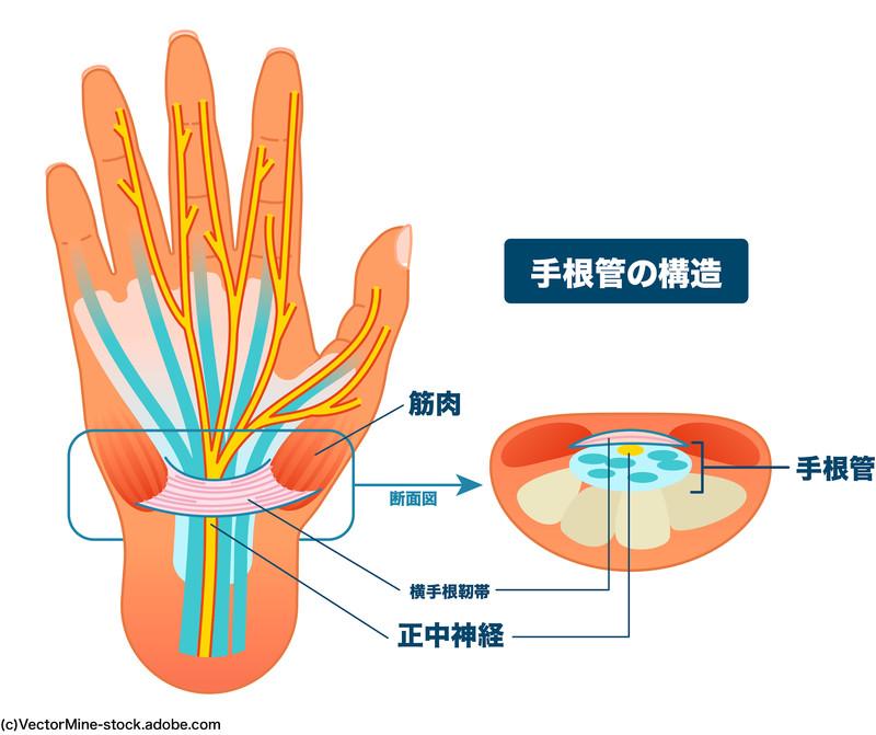 手根管症候群:手根管の構造と正中神経