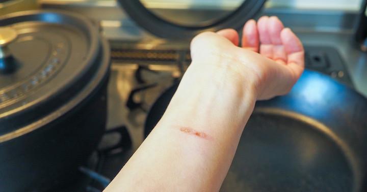 「火傷(やけど)」をしたとき、まずやるべきことはただ一つ:熱傷の初期対応についての写真