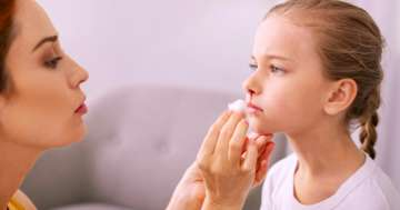 鼻血はなぜ出る?どう止める?:家庭での適切な対処方法と、受診が必要なケースについての写真