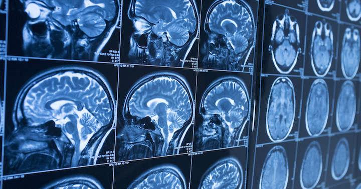 MRI検査を受けるまえに知っておきたいことの写真