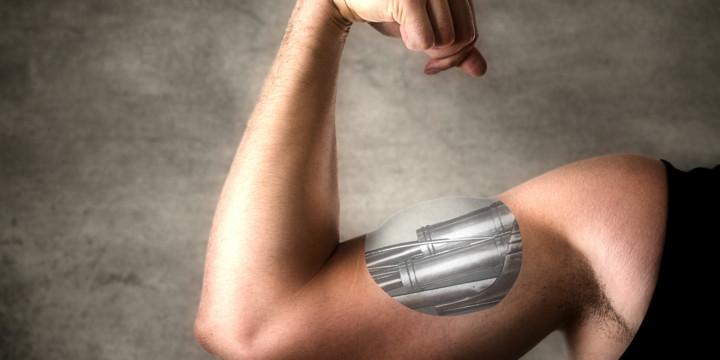 筋電義手を使った新たな治療法で腕の機能が劇的に回復の写真