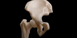 股関節骨折、早期退院は死亡リスクが増加する?の写真