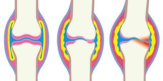 そのうち変形性膝関節症が早期に予測できるようになる!? の写真