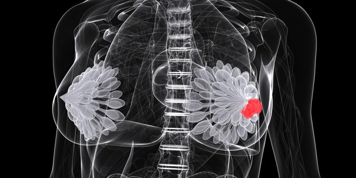マンモグラフィーよりも乳がんを見つけやすい新たな画像検査の写真