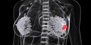 マンモグラフィーよりも乳がんを見つけやすい新たな画像検査
