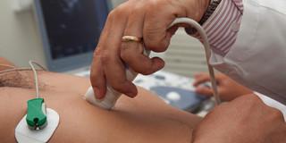 肺炎の診断に超音波検査が有効!の写真