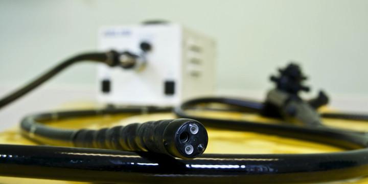 炎症性腸疾患がある人は大腸内視鏡検査を受けたほうが死亡率が低かったの写真