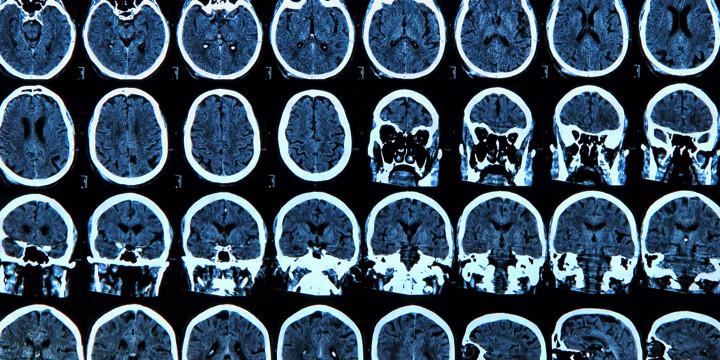 細かい脳梗塞や脳出血が、うつ病を引き起こすのか?の写真