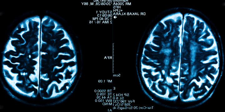 アルコール依存症患者の脳に、断酒後2週間で回復の兆しがあったの写真