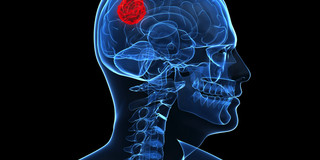 血糖値が高い人の方が脳腫瘍の経過が悪かったの写真