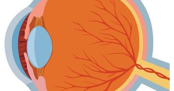 緑内障のインプラント手術、埋め込んで5年後の結果は?の写真