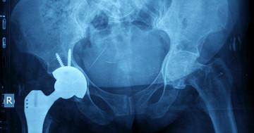 変形性股関節症などの人工関節置換術後、日常生活の厳しい制限が脱臼にあまり関係なかった の写真