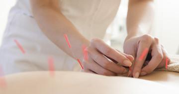 ぎっくり腰に新しい針治療が有効!?鍼を打ったまま動くと腰痛が改善 の写真 (C) yuuuu - Fotolia.com