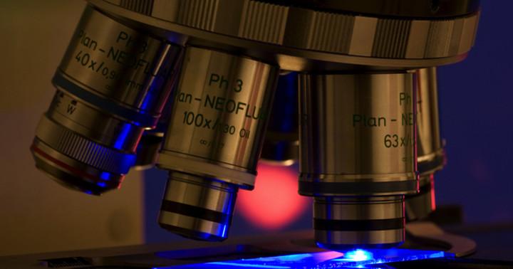 子宮頸がんの前の段階「子宮頸部上皮内腫瘍」に対する光線力学療法の効果はの写真