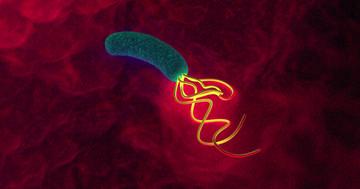 ピロリ菌の除菌で逆流性食道炎に?胃がん予防はトレードオフなのかの写真