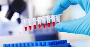 エボラ出血熱に感染しているかどうかが15分でわかる検査キット登場の写真