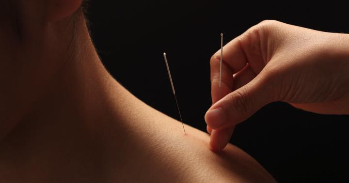 首の痛み、「トリガーポイント」に鍼を打つと良くなった! の写真