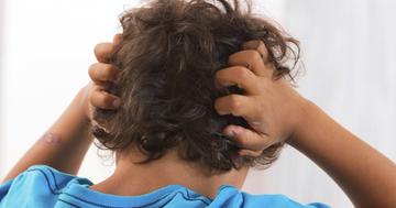 子どものアタマジラミ駆除に、ジメチコンで98%が成虫ゼロにの写真