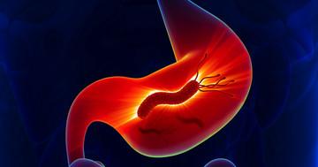 ピロリ菌とがんの関係はどこまで?頭頸部癌と検査結果の関連の写真