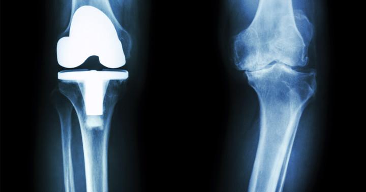 変形性膝関節症に対して人工膝関節全置換術をした人は心血管疾患が少なかったの写真