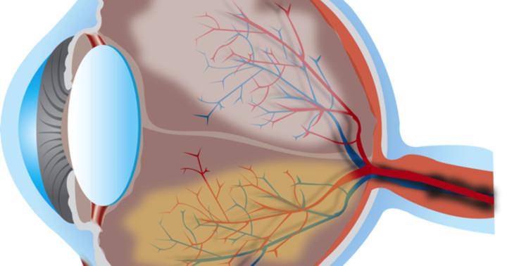 飛蚊症の原因を光干渉断層法で検討、硝子体混濁に手術不要と判断の写真