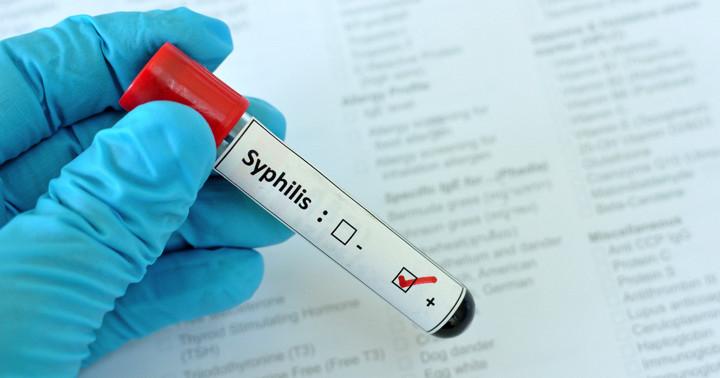 サイトメガロウイルス感染と梅毒の関連、HIV感染者での写真