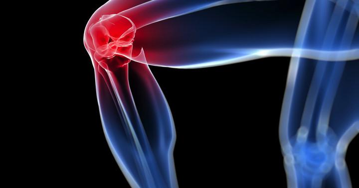 変形性膝関節症による軟骨のダメージを防げるか?関節離開術と外固定の試みの写真