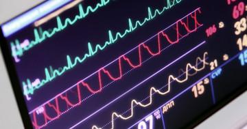 心臓再同期療法が心不全を改善、入院・生活の質・運動能力に対する効果の写真