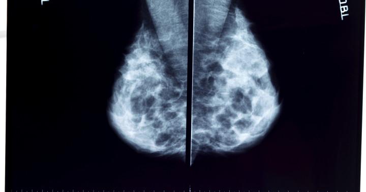 マンモグラフィーは乳がんによる死亡を減らさないのか?1600万人の女性を調べても…の写真
