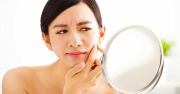 にきび治療に新たな報告!乳酸発酵させたヒノキがティーツリーオイルよりも効いた の写真 (C) Tom Wang - Fotolia.com