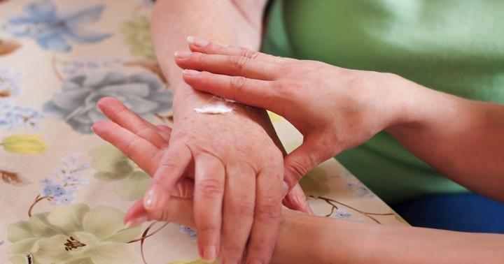 抗がん剤の副作用を抑える軟膏、手足症候群の予防に効果は?の写真