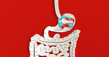 ステロイド潰瘍はステロイドでは起こらない(!?)の写真