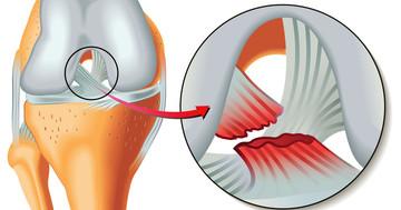 前十字靭帯損傷の手術から20年後、移植した膝蓋腱はどうなっていた?の写真