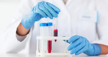 巨細胞性動脈炎とリウマチ性多発筋痛症を発見する新しい検査の写真