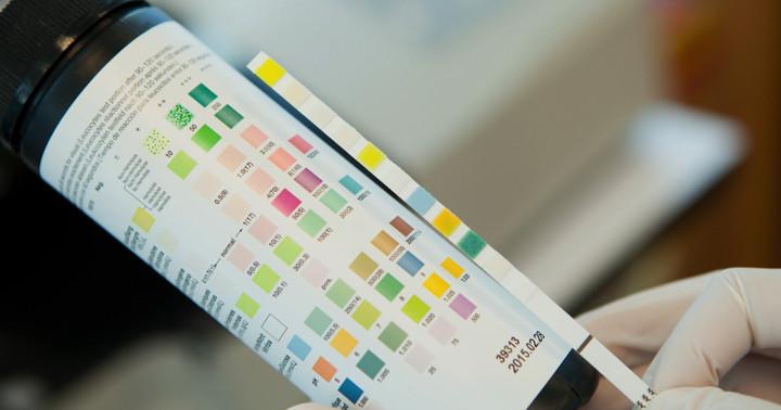 尿検査で動脈硬化を早期に診断、アルブミンから見えた変化の写真